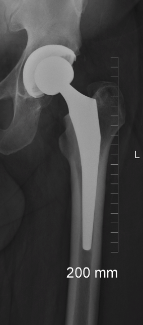 Hip Resurfacing or Total Hip Replacement: A Candid Discussion - The
